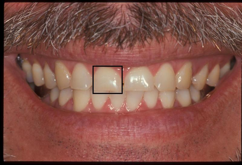 Central incisor before cosmetic treatment | Orange Center for Cosmetic Dentistry