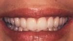 After Porcelain Veneers | Orange Center for Cosmetic Dentistry