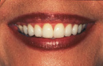 Diastema Corrected with Porcelain Veneers | Orange Center for Cosmetic Dentistry