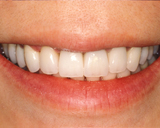 After Ceramic Crowns | Orange Center for Cosmetic Dentistry