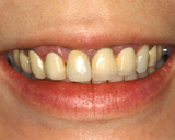 Before Dental Crowns | Orange Center for Cosmetic Dentistry