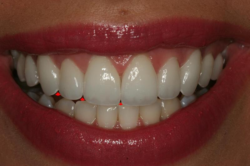 Embrasures/scalloping of teeth with veneers | Dr Joseph Henry