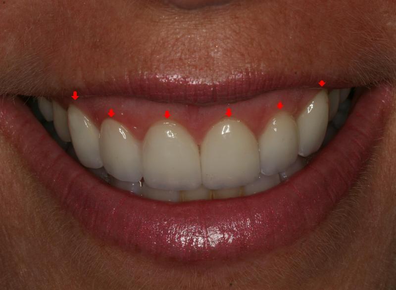 Gum line symmetry in a smile makeover | Orange CA