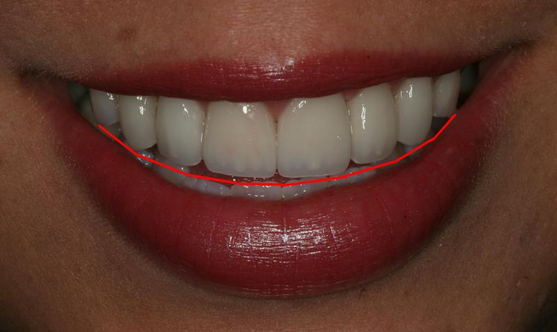 Edging the smile along the lower lip | Orange Center for Cosmetic Dentistry