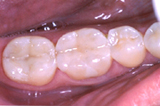 White Fillings - After | Orange Center for Cosmetic Dentistry