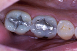 Old metal fillings before replacement with white fillings - Example 2