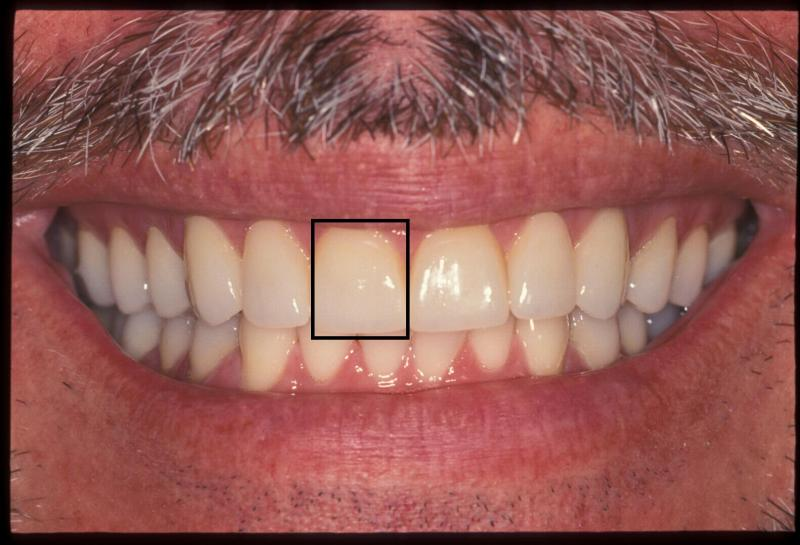 Central incisor after cosmetic treatment | Orange Center for Cosmetic Dentistry
