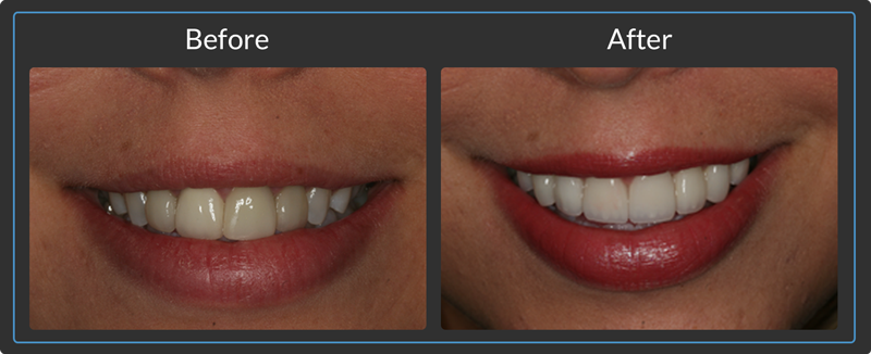 Before & After Dental Inlays & Onlays in Orange County